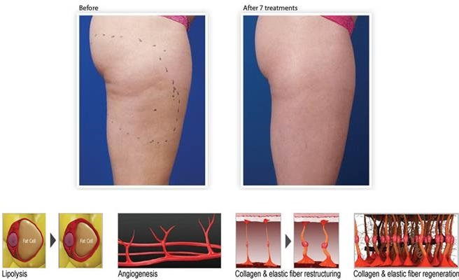 Cellulite Reduction at Laser Me Chester